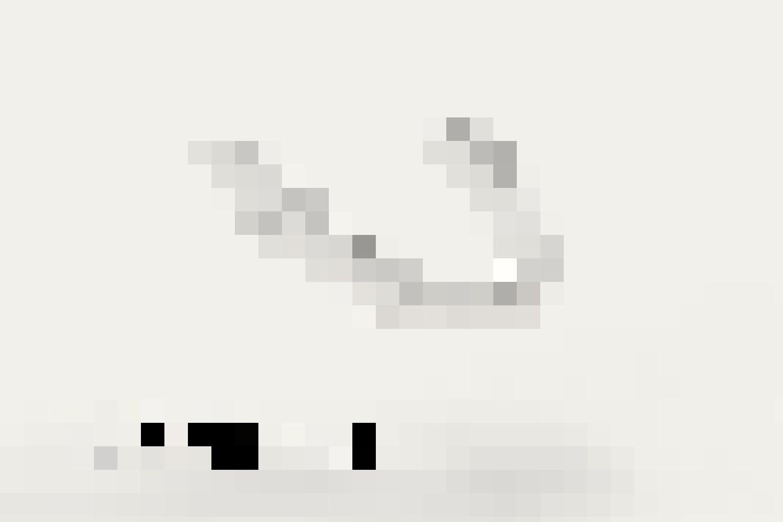 Correction de la mâchoire supérieure ou inférieure: 1990 CHF (à partir de 80 CHF/mois *)