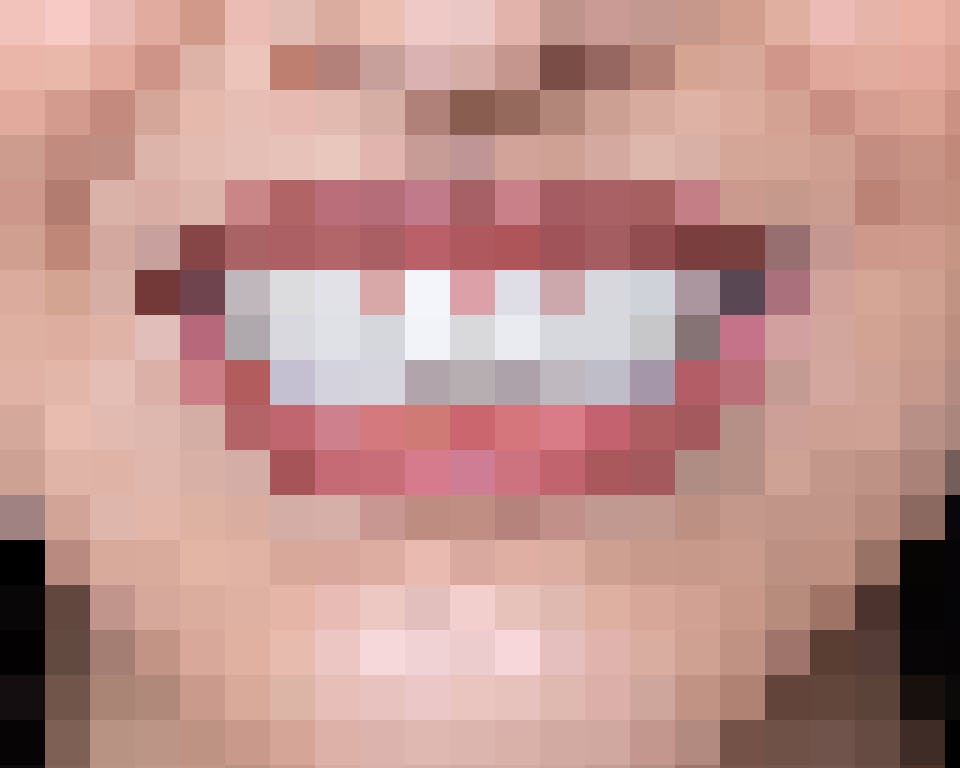 Die kaum sichtbare bestsmile-Zahnspange. Swiss made mit modernster Technologie
